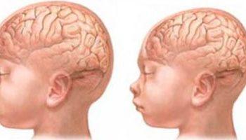 Microcefalia, um novo problema de saúde pública